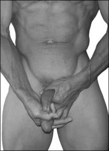 Pênis depois de operação em aumento